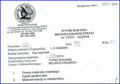 Badanie histopatologiczne guza mózgu